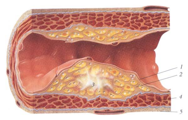 verhouding goede en slechte cholesterol